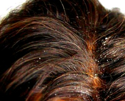 dandruff tips and trics image