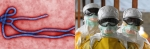 What is Ebola Virus, Ebola Facts, Symptoms and Treatment